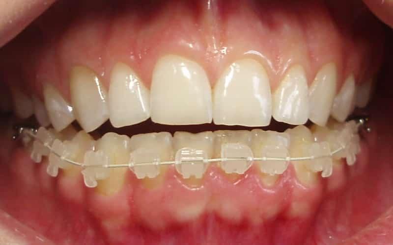фото брекетов на зубах