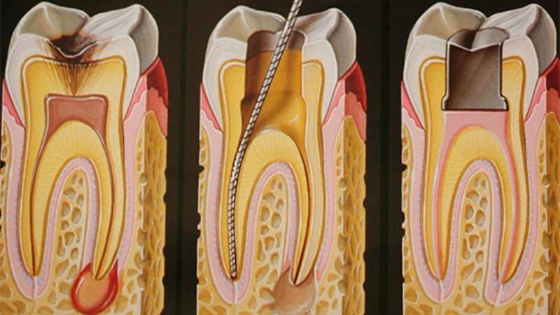 болит зуб после лечения глубокого кариеса