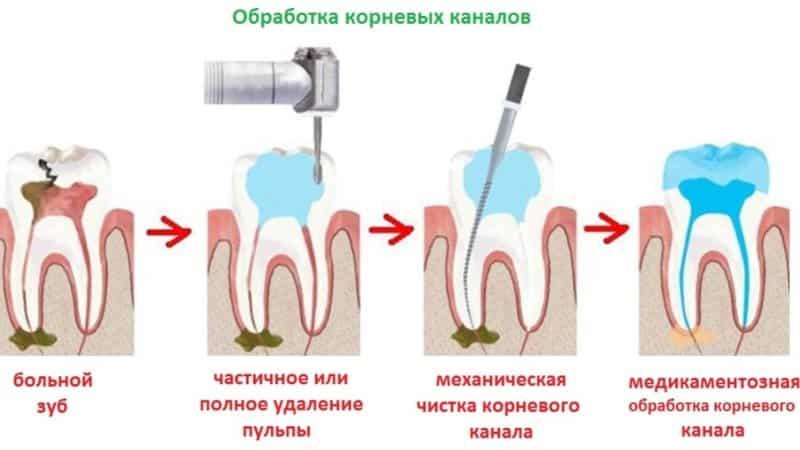 лечение глубокого кариеса этапы
