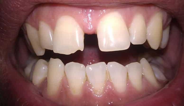 как исправить щель между передними зубами