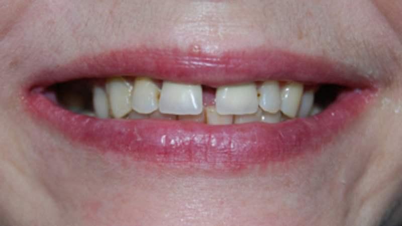 как называется щель между передними зубами