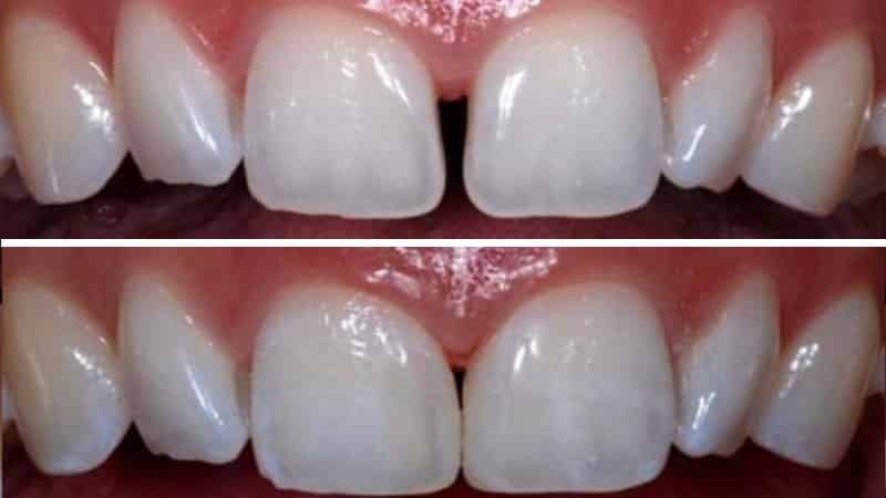 почему между зубами появляются щели