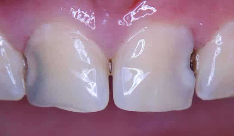 kak-lechit-karies-mezdu-zubami2