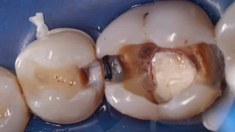 кариес между зубов