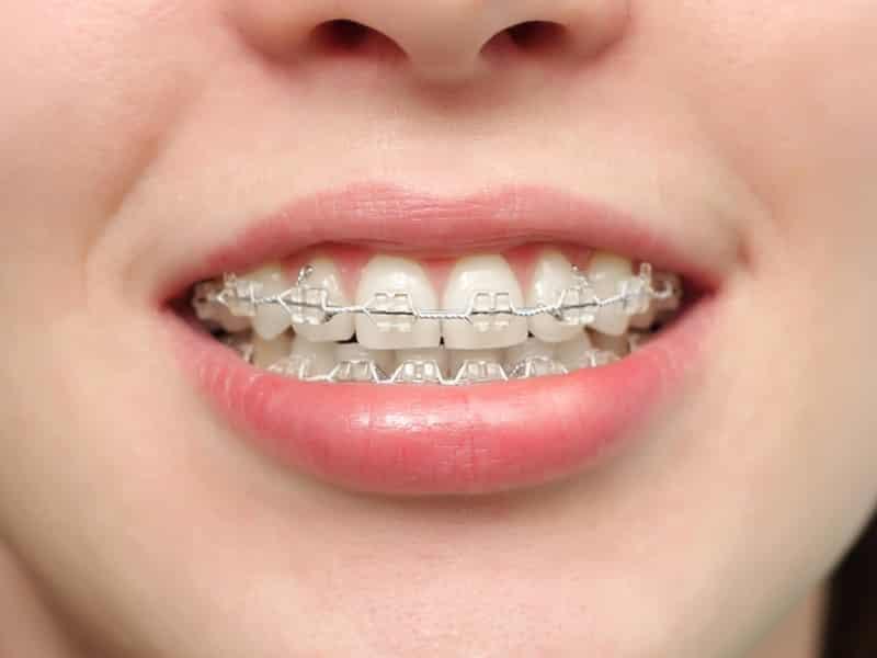 как выглядят брекеты на зубах фото