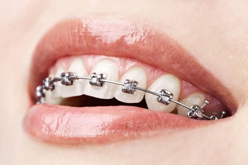 какие бывают брекеты на зубы фото