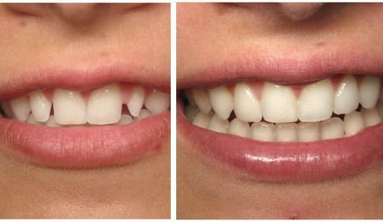 керамические зубы фото до и после
