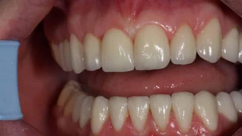 керамическая коронка на зуб фото