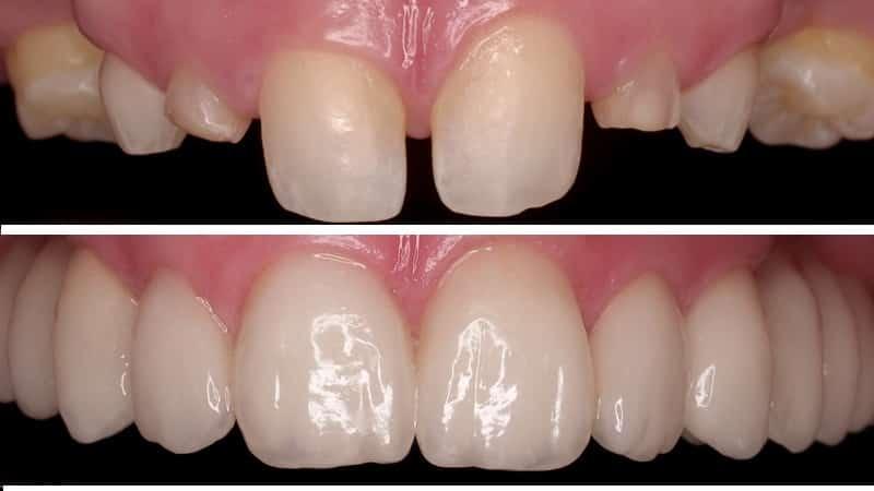 керамическая коронка на зуб отзывы