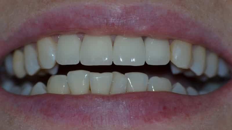 керамические зубы фото