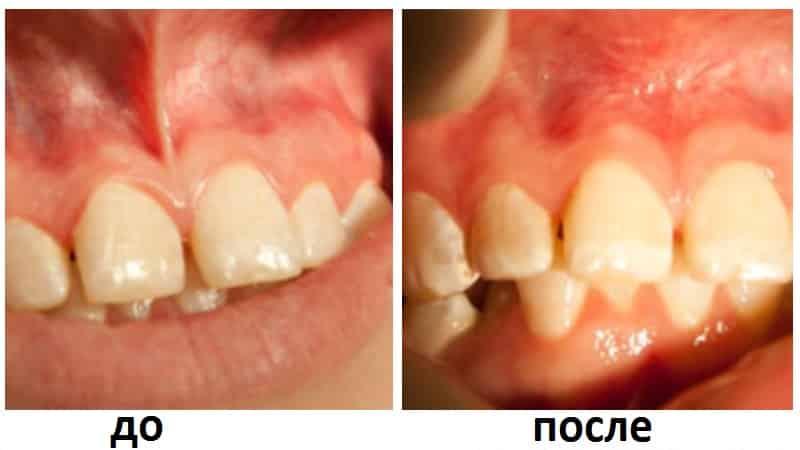 удаление уздечки верхней губы