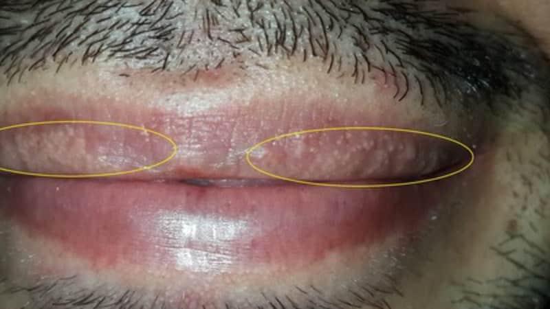 Хвороба Фордайса на губах фото