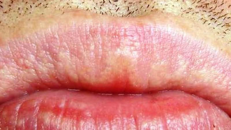 белое пятно на губе