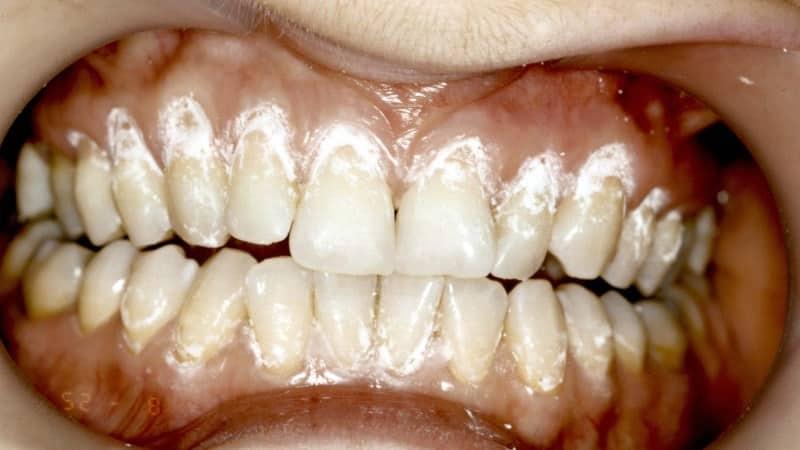 чувствительная эмаль зубов что делать