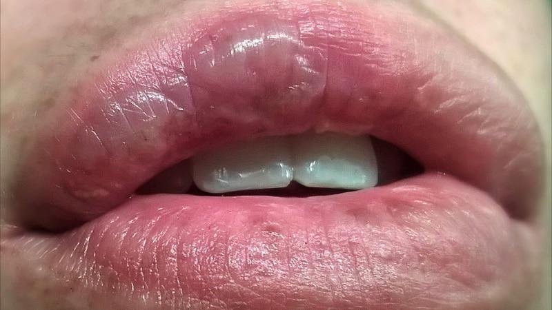 что делать при ожоге губы