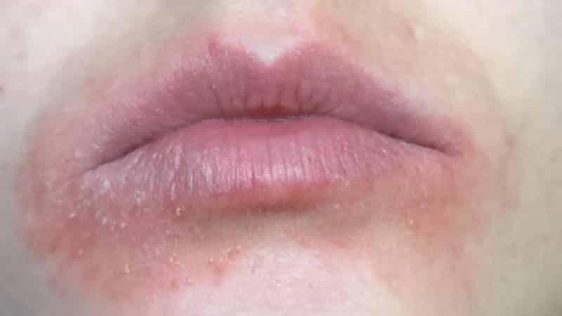 как и чем лечить ожог губы