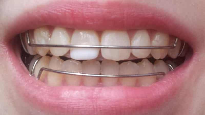 детские пластины на зубы фото
