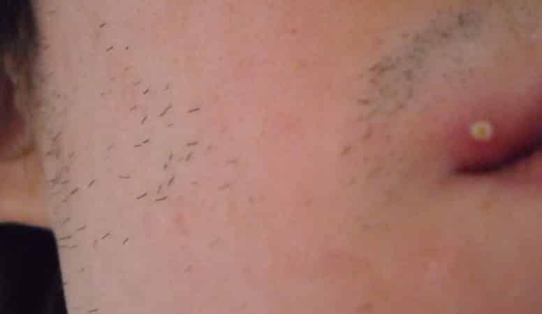 пупырышки на губах
