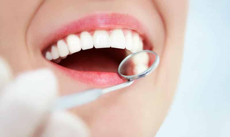 Какие бывают вставные зубы