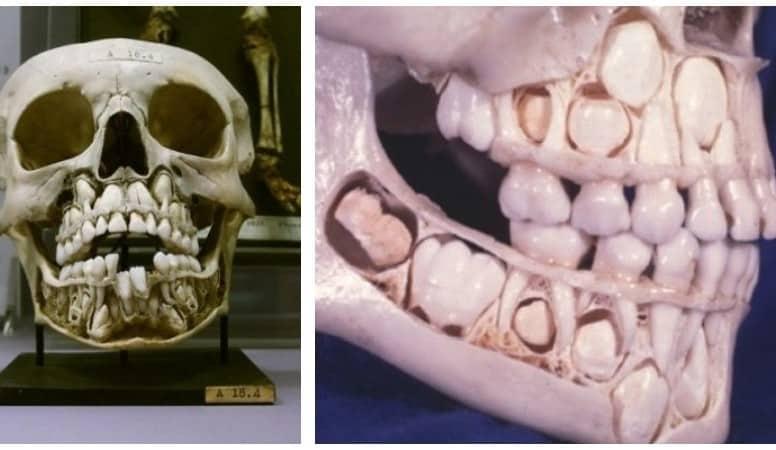 смена зубов у детей схема