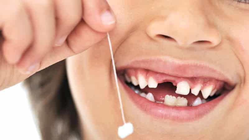 зубы у детей порядок смены молочных зубов на постоянные