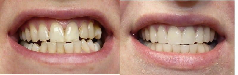 Световая пломба на передних зубах