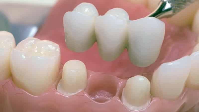пластмассовые зубные протезы отзывы