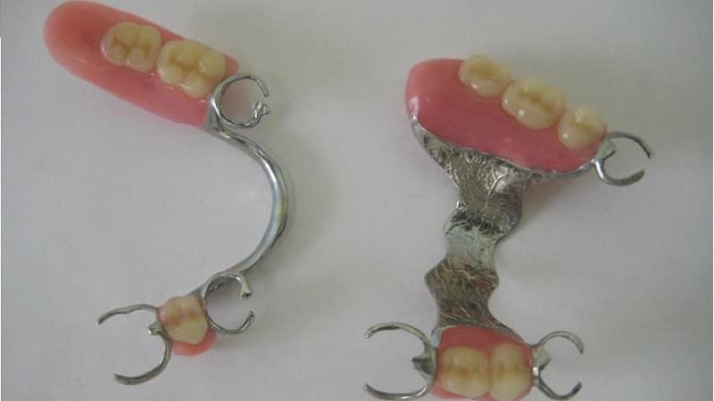 как ухаживать за бюгельными зубными протезами и чем их чистить