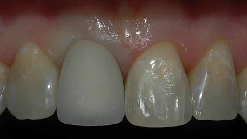 временные пластмассовые коронки на передние зубы