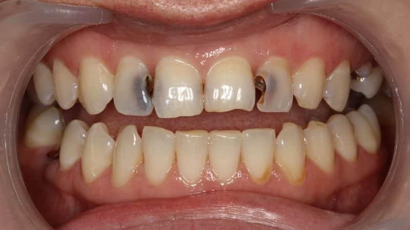 Аномалии формы зубов лечение
