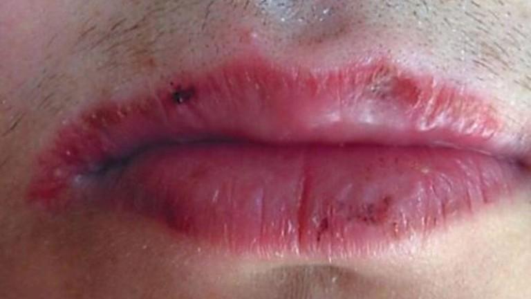 почему сохнут губы причины у мужчин