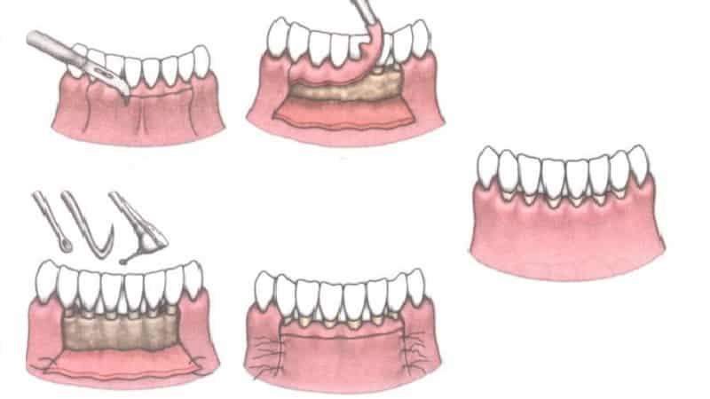 как лечить карман в десне между зубами
