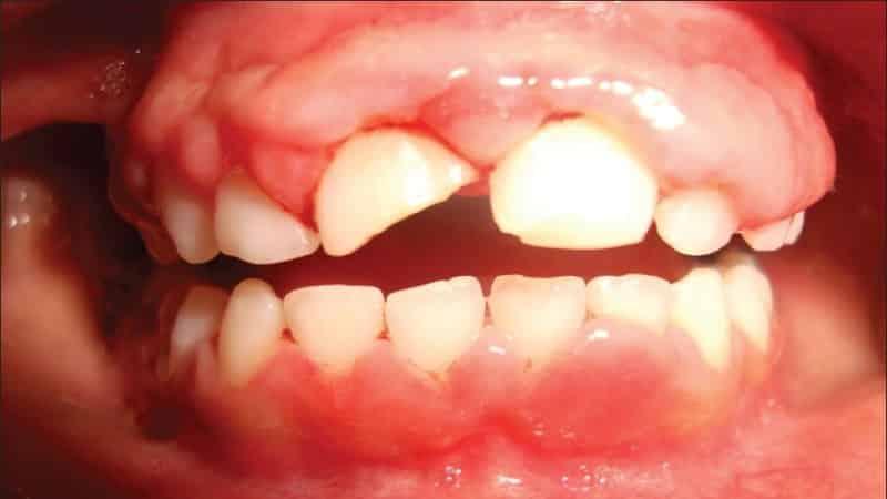 гингивит симптомы и лечение у детей