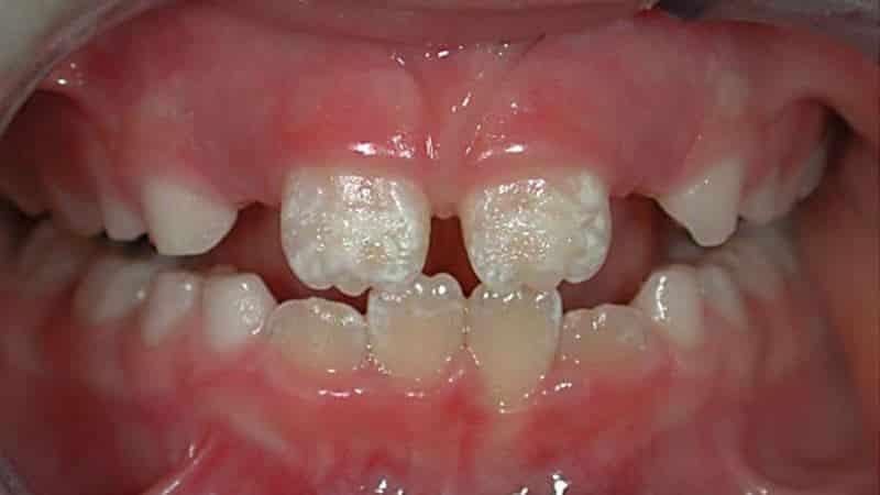 гипоплазия эмали молочних зубов фото