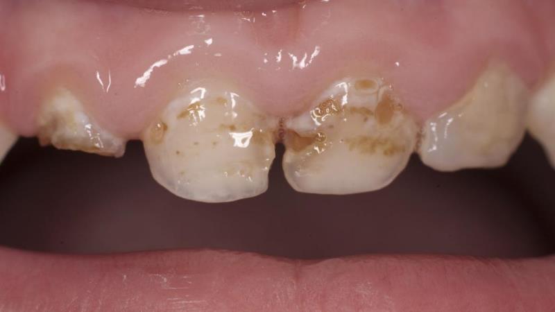 гипоплазия молочних зубов