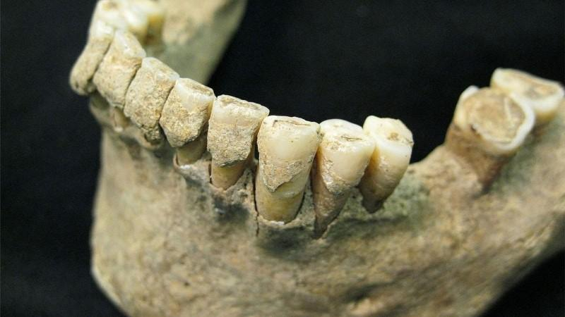 к чему снятся гнилые выпадающие зубы