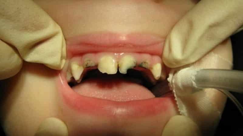 к чему снятся зубы выпадают и крошатся