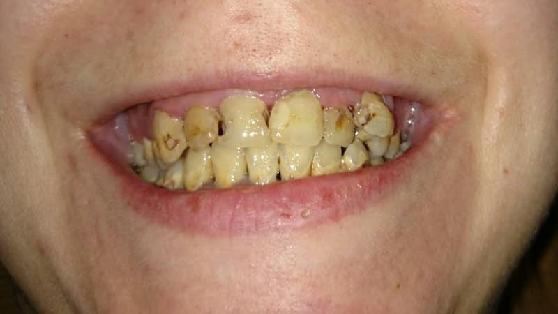 К чему сниться крошение зубов не свои