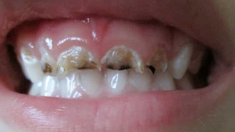Крошатся зубы во сне – к ссоре с возлюбленным, возможно расставание или полный разрыв отношений.
