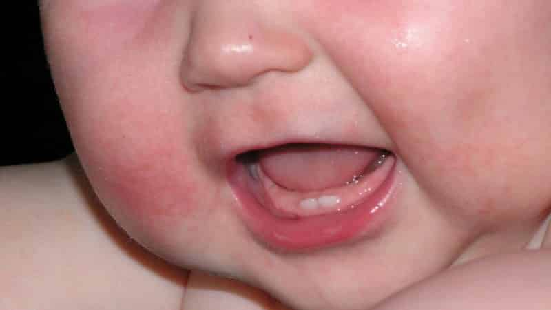 почему у ребенка красные щеки и горячие