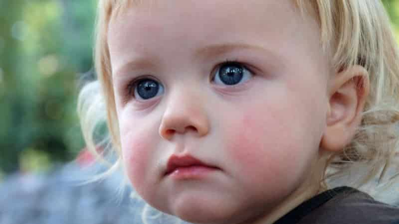 покраснели щеки у ребенка