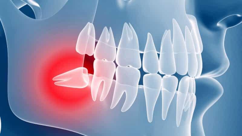 зубная боль отдает в висок