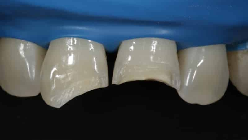 наращивание зубов фото до и после