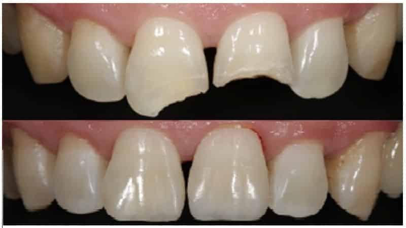 наращивание зубов плюсы и минусы