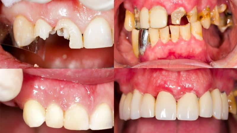 Восстановление зубов фото до и после
