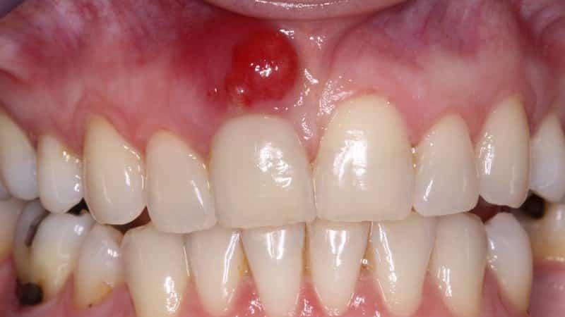 Как в домашних условиях вытянуть гной из зуба