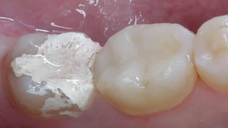 пломба на зуб фото