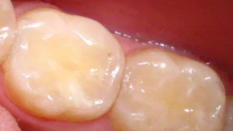 какие зубные пломбы лучше ставить