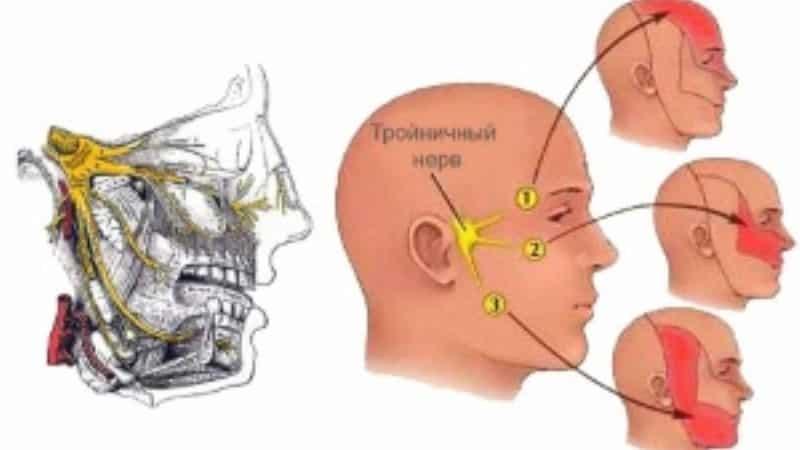 болит челюсть отдает в ухо