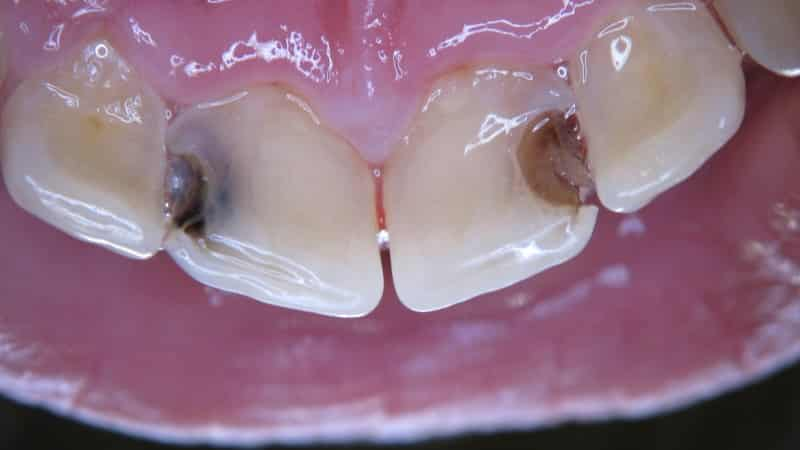 что делать если ноет зуб
